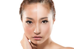 Face lifting for CNNC